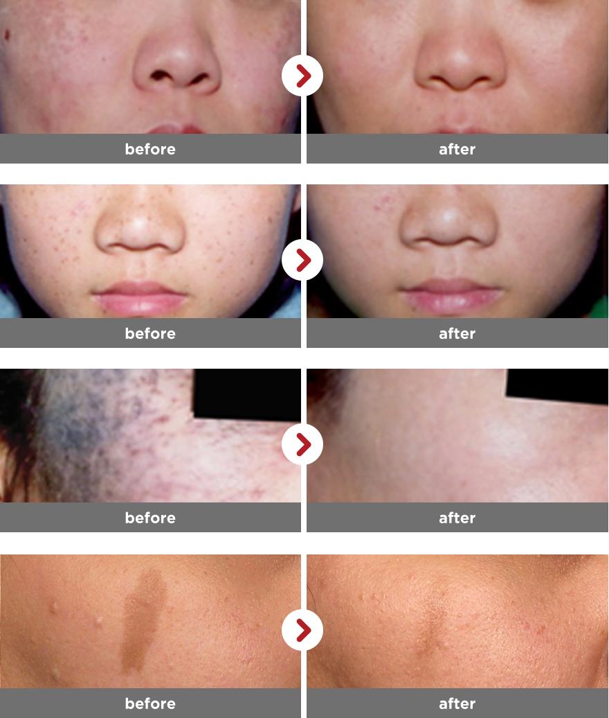 청담연세피부과, 색소치료 시술전후